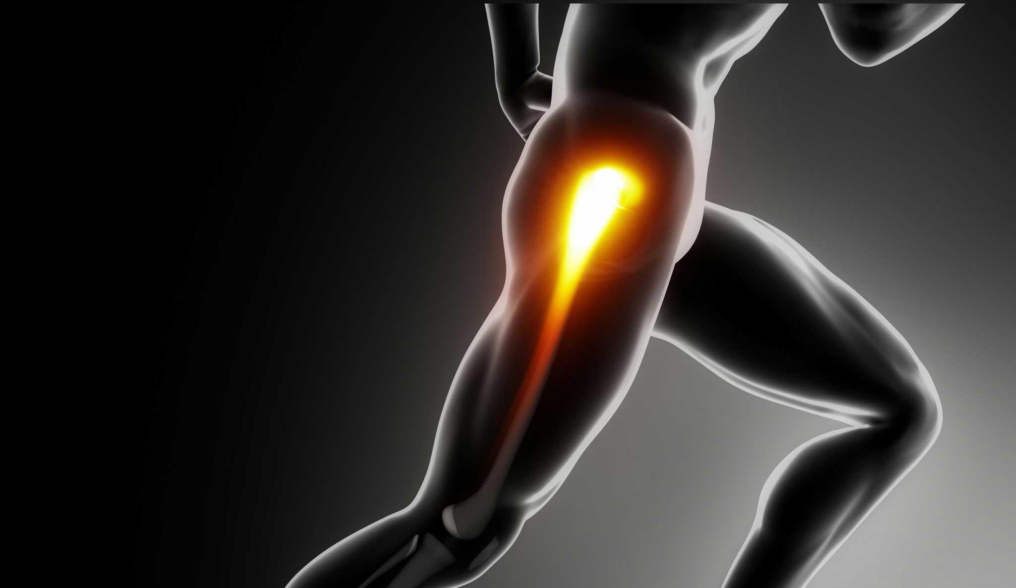 Hip Pain in Phoenix - illustration of hip pain