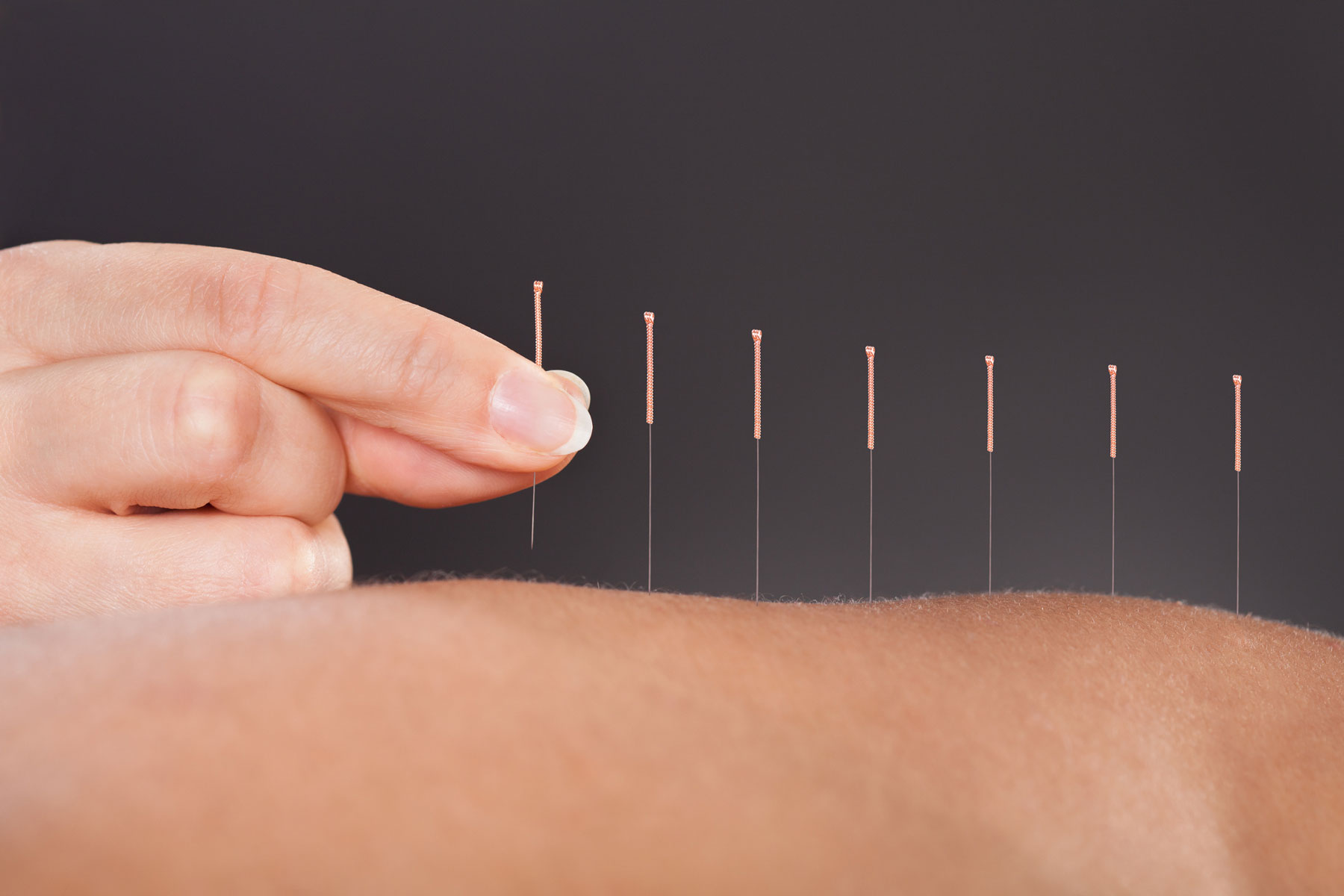 Musculoskeletal Pain and Acupuncture in Phoenix & Mesa